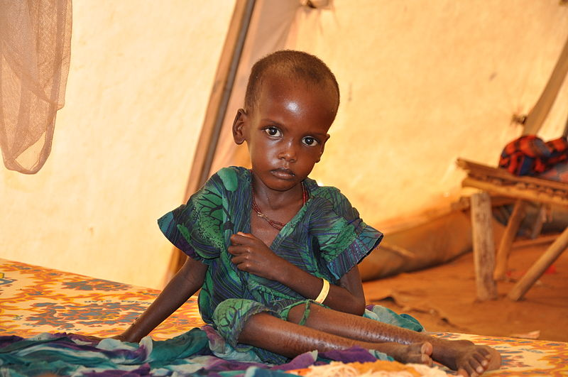 A malnourished child in an Medicins Sans Frontieres (Doctors Without Borders) treatment tent in the Dolo Ado camp, near Ethiopia's border with Somalia